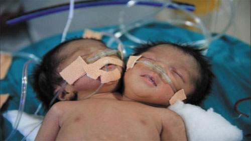 Cặp song sinh bị dính liền nhau - Babies with one body