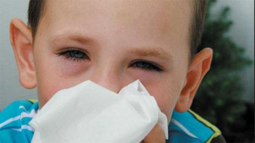 Dị ứng mắt - Eye allergies