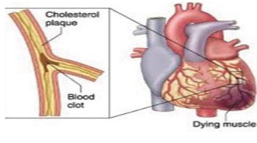 Hệ tim mạch trong tiếng Anh (tiếp)